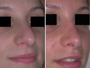 armonizzare-naso