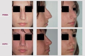 Rinoplastica Naso Storto Aquilino