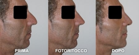 fotoritocco-naso-uomo