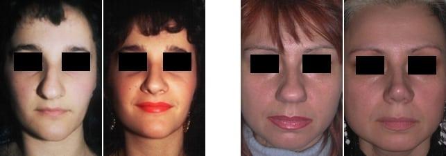 restringere-punta-naso
