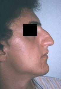 rinoplastica-foto-prima-02