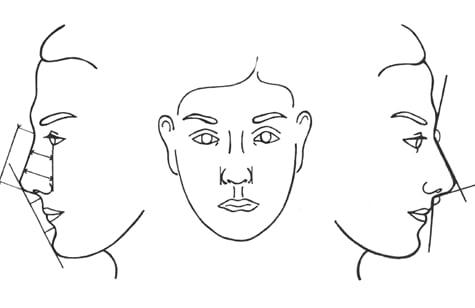 rinoplastica-viso