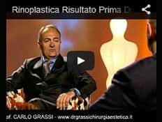 Video: Il risultato Prima e Dopo l'Intervento di Rinoplastica