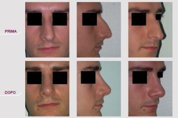 Rinosettoplastica Naso Deviato