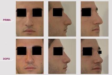 Rinoplastica Naso Storto Sporgente