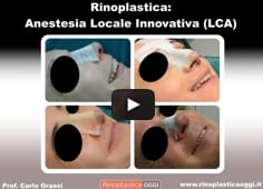Video: Rinoplastica in Anestesia Locale Innovativa
