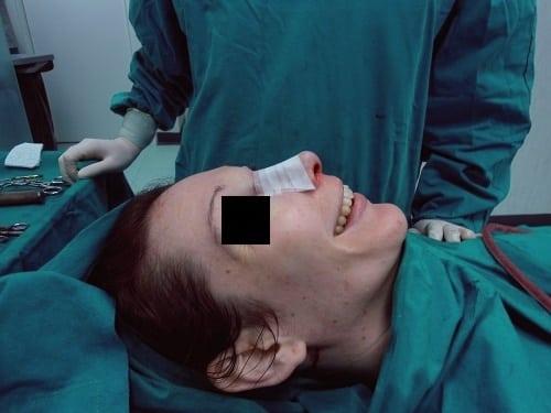 rinoplasica-senza-dolore-02