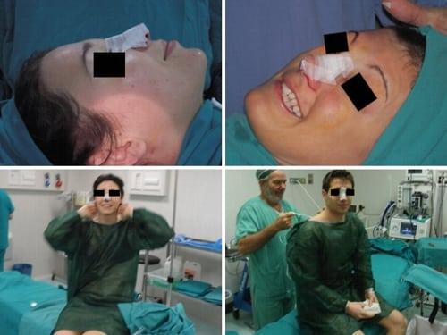 Rinoplastica in anestesia locale