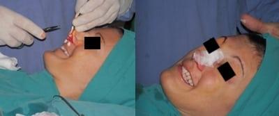 anestesia-locale