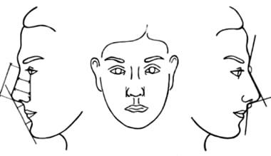 forma-naso