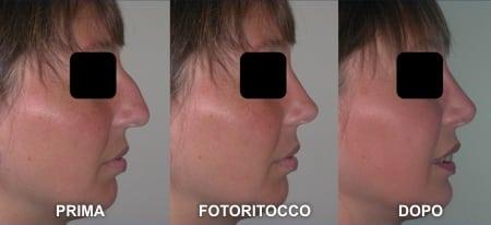 fotoritocco-naso