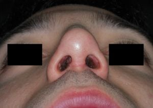 rinoplastica-aperta-open