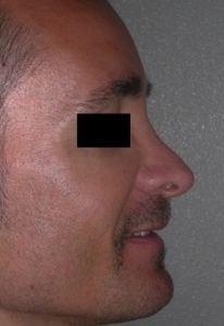 rinoplastica-secondaria-uomo-01a