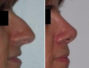 scorciare-naso