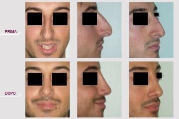 Rinoplastica Naso Grande