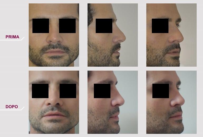 Rinoplastica Minima Uomo con Naso Storto