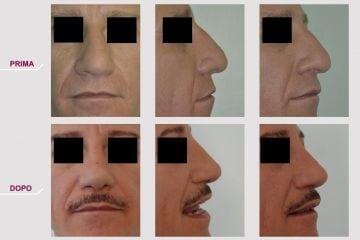 Rinoplastica Naso Grande e Grosso
